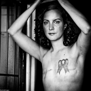 The SCAR Project reveals breast cancer reality
